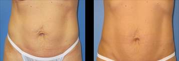Exilis Ultra 360™ Before and After Photo Gallery