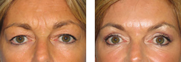 Eyelid Surgery Photo Gallery - Boston, MA