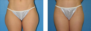 Liposuction Photo Gallery - Boston, MA